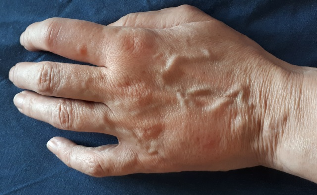 Image of bitten hand with swollen finger and back of hand.